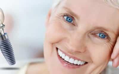 Koja je cijena zubnih implantata i o čemu ovisi